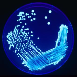 Legionella Plate 01