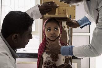 Una delle foto del reportage in Yemen con cui Lorenzo Tugnoli ha vinto il Pulitzer e il World Press Photo. Una bimba di 10 anni visitata in una clinica di Aslam: è denutrita ma non ancora in pericolo di vita e quindi non può essere ricoverata (Dicembre 2018, credit Washington Post/Contrasto)